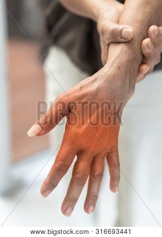 Peripheral Neuropathy Pain In Elderly Ageing Patient On Hand, Palm, Fingers, Joint And Sensory Nerve