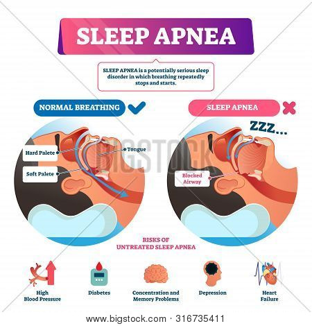 Sleep Apnea Vector Illustration. Labeled Nasal Tongue Blocked Airway Scheme. Diagram With Normal And