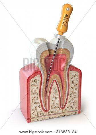 Cross section of Human tooth with endodontic file isolated on white. 3d illustration