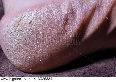 Man's Leg With Cracks On The Heel. Close-up Of Cracked Heel. Problem Area Of The Foot Requiring Medi