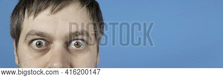 Surprised Man Bulging Eyes On Blue Banner With Place For Text. Exophthalmos With Hyperthyroidism Or