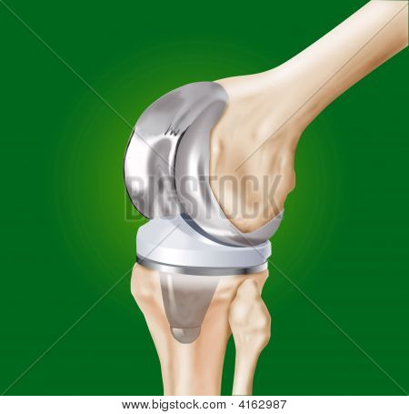 Prosthesis Of The Knee Surgical