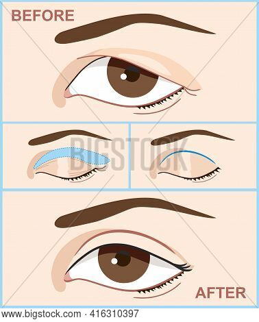 Blepharoplasty Of Eyelid. Before And After The Double Eyelid Surgery Of Women. Vector Illustration W