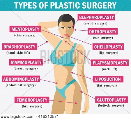 Medicine Plastic Surgery Infographics. Types Of Plastic Surgery. Body And Face Plastic Surgery Infog