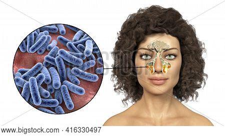 Sinusitis, Inflammation Of Paranasal Cavities. 3d Illustration Showing Inflammation Of Maxillary Sin
