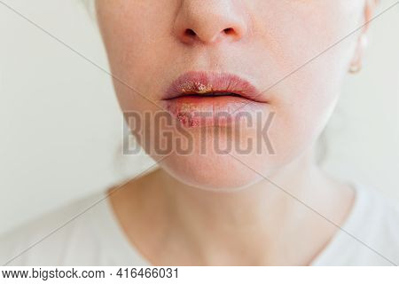 Close Up Of Girl Lips Affected By Herpes. Treatment Of Herpes Infection And Virus. Part Of Young Wom