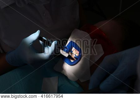 The Dentist Prepares The Patient's Teeth For The Bleaching Procedure.teeth Whitening In A Dental Cli