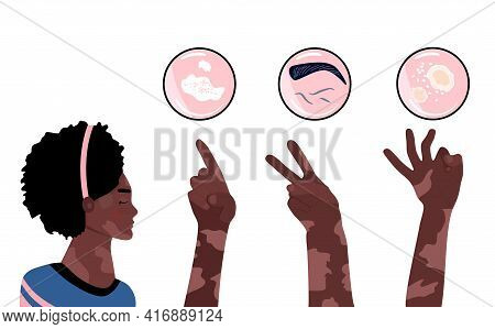 World Vitiligo Day.young Afro American Woman With Skin Disease.hands Show 1,2,3 Fingers. Pigmentatio