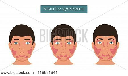 Vector Illustration Of Mikulicz Syndrome. Enlargement Of The Lacrimal And Salivary Glands.