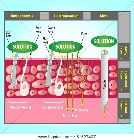 Illustration of Transdermal Delivery Skin Pore Mechanism poster
