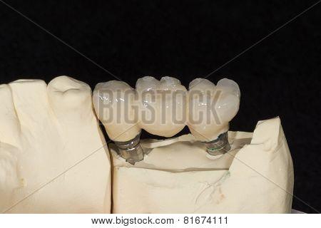 Dental Implant To Three Elements