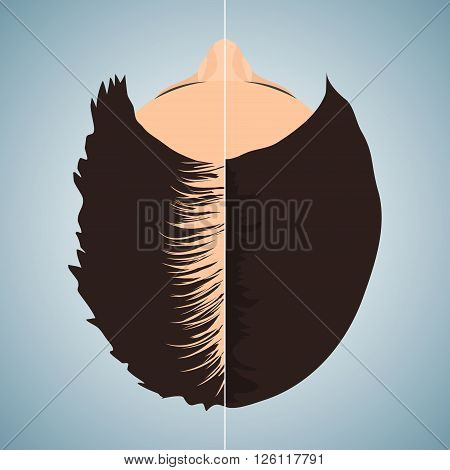 Top view portrait of a woman losing hair before and after hair treatment and hair transplantation. Divided image of a woman head. Two halves. Female hair loss. Hair care concept. Vector illustration.