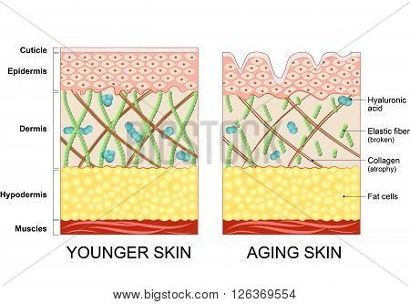 younger skin and aging skin. elastin and collagen. A diagram of younger skin and aging skin showing the decrease in collagen and broken elastin in older skin. poster