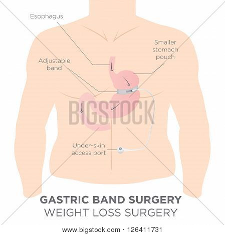 Gastric Band for Weight Loss.  If you Tighten or Loosen it, It Lets More Food Slide Down in the Lower Stomach.  The Doctor Assistant Adjusts the Tightness of the Band with a Port that's Under the Skin. poster