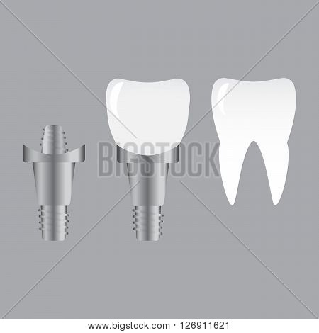 Tooth implants and normal tooth isolated on white background. Screw implant