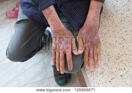 Skin disorder in back hand ,disease of skin