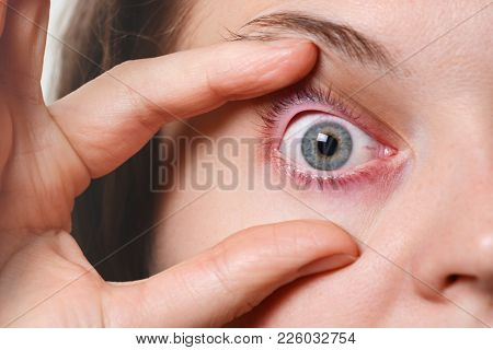 Woman`s Red Eye. Ill Woman Has Conjunctivitis After Fever Attack. Problems With Blood Vesseles. Infl