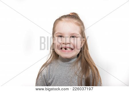 Little Girl Showing Missing Teeth, Isolated On White Background For Any Purpose
