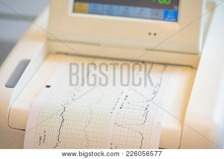 Printing of cardiogram report coming out from Electrocardiograph in labour ward poster