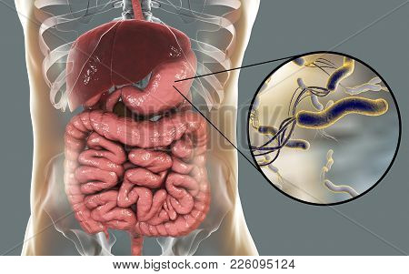 Helicobacter Pylori, Bacterium Colonizing Stomach And Associated With Gastric And Duodenal Ulcer, 3d