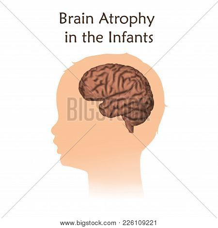 Brain Atrophy In The Infants. White Background. Silhouette Of Child Head