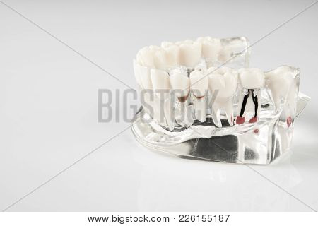 Oral Healthcare, Education Concept. Dental Tooth Dentistry Student Learning Teaching Model Showing T