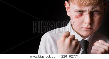 Portrait Of A Schoolboy With Clenched Fists And Wound On His Face. Concept Of Adolescent Violence.