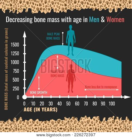 Decreasing Bone Mass With Age In Men And Women. Detailed Infographic In Beige, Pink And Blue Colors.