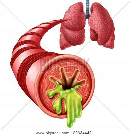 Bronchitis Anatomy Concept As An Inflammation Of Bronchial Tube Lining With Thick Mucus Secreted As