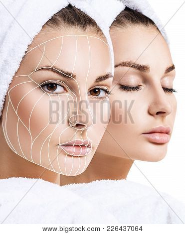 Face Lift Anti-aging Lines On Young Female Face. Graphic Lines Showing Facial Lifting Effect On Skin