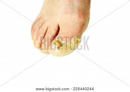 Extreme Bad Foot Skin Bacterial Fungal Infection With Damaged Nail Close Up Partially Isolated On Wh