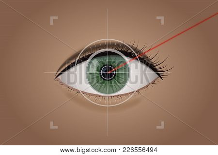 Vision Correction By A Laser Beam. Ophthalmologist Vector Illustration. Green The Human Eye. Medical