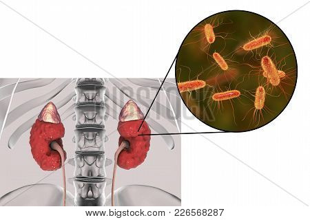Pyelonephritis, Medical Concept, And Close-up View Of Bacteria Escherichia Coli, The Common Causativ