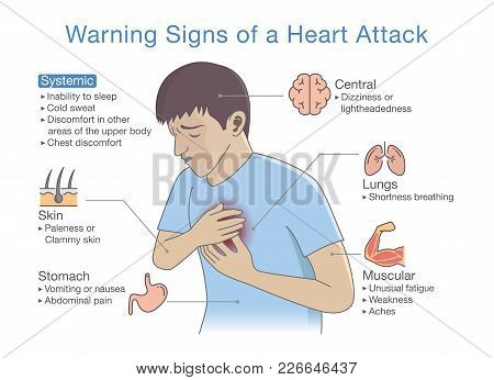 Diagram About Warning Signs Of A Heart Attack. Illustration About Disease Symptoms When Occurring.