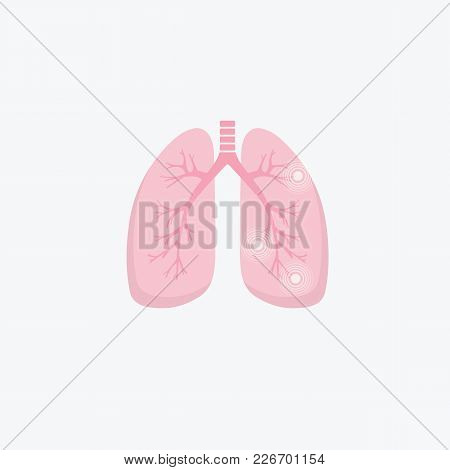Human Lung Illness Anatomy Diagram. Lung Cancer (asthma, Tuberculosis, Pneumonia). Respiratory Syste