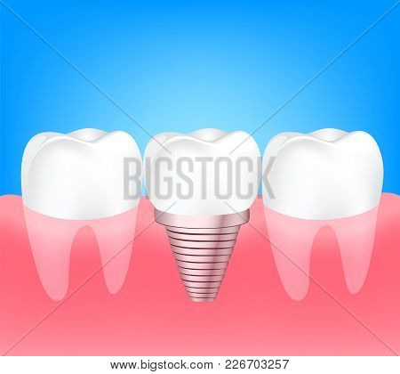 Two Healthy Teeth And Implant Tooth Between. Human Tooth Implant Concept. Illustration On Blue Backg