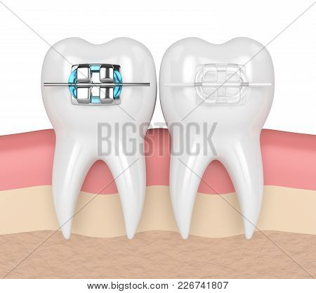 3d Render Of Teeth With Ceramic And Metal Braces In Gums. The Concept Of Comparison Of Two Types Of