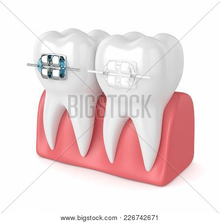 3D Render Of Teeth With Ceramic And Metal Braces