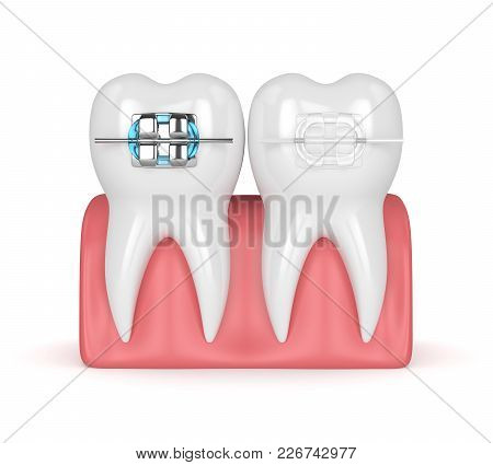 3D Render Of Teeth With Ceramic And Metal Braces