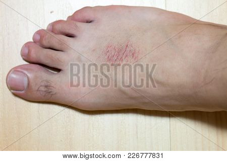 Dry Skin And Rash At Male Foot On Wood Background