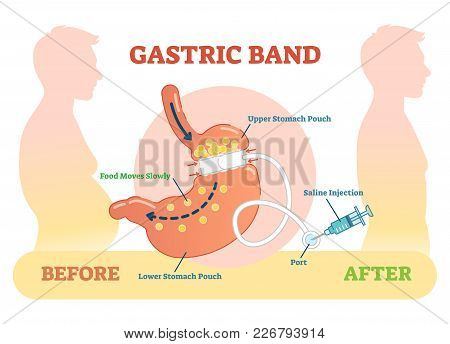 Gastric Band Anatomical Vector Illustration Diagram, Medical Before  After Scheme.