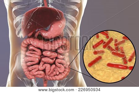 Normal Flora Of Large Intestine, Bacteria Bidifobacterium, 3d Illustration. Intestinal Microbiome. P