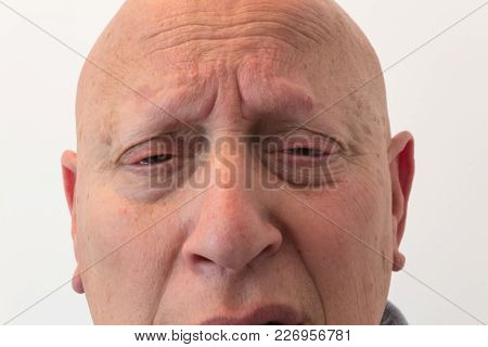 Older Man Close View Of Face With Anxious Pain, Bald, Alopecia, Chemotherapy, Cancer, Isolated On Wh