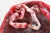 Studio shot of raw, fresh human placenta poster