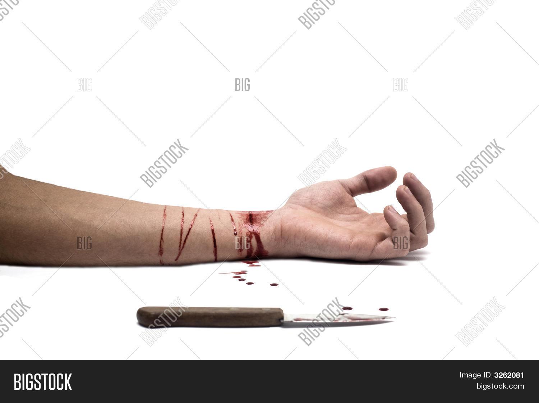bleeding wrist drawing - 562×375
