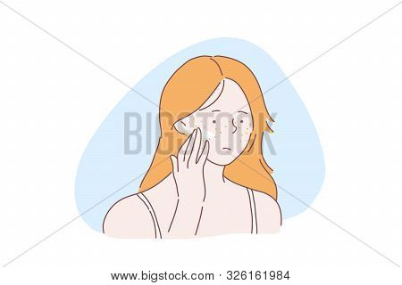 Teenage Girl Skincare Problem Concept. Woman With Facial Rash, Lady Applies Cream, Ointment On Skin