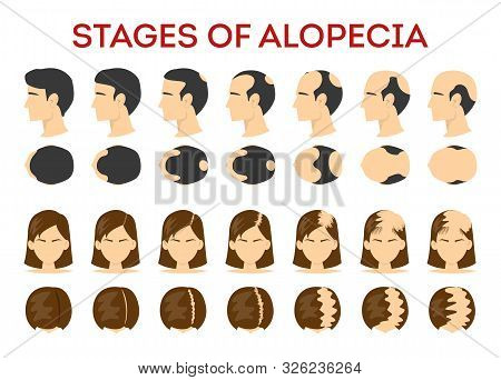 Alopecia Stages Set. Hair Loss, Balding Process. Female