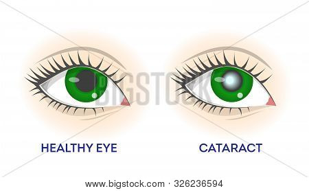 Healthy Eye And Cataract. Retina Disease, Problems With Vision