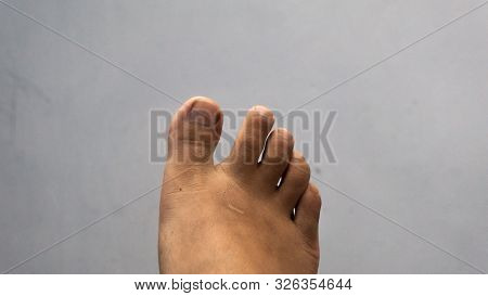 Close Up View Of A Human Toes. Adult Man Toes. Greek Toes Shape, Often Referred To As The Flame Foot