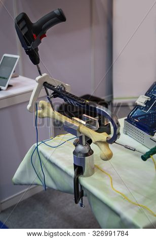 Orthopaedic Trauma Devices. Bone Fracture Repair Tool